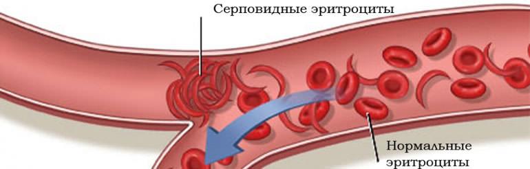 Серповидно-клеточная анемия: симптомы, диагностика и лечение