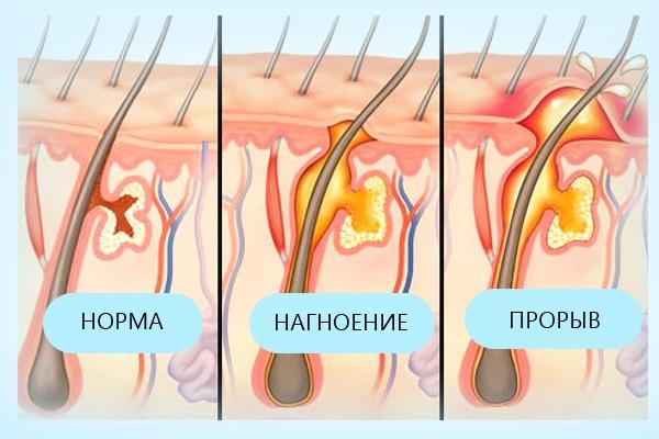 Фурункул (чирей) – симптомы, диагностика, лечение и профилактика заболевания