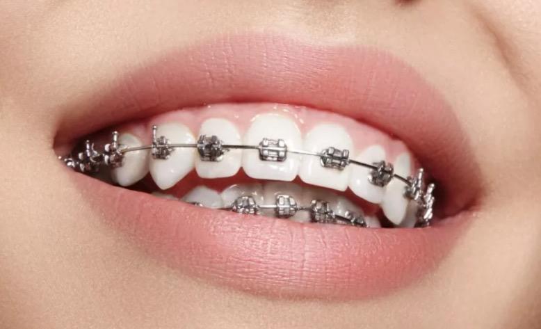 Обязательно ли удаление зубов мудрости при установке брекетов?